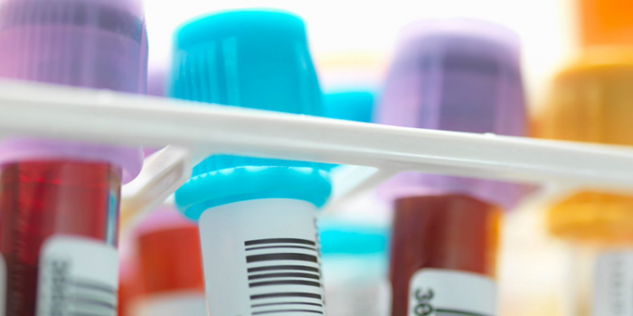 Epic Sciences Closes $40M to Advance Predictive Cancer Tests