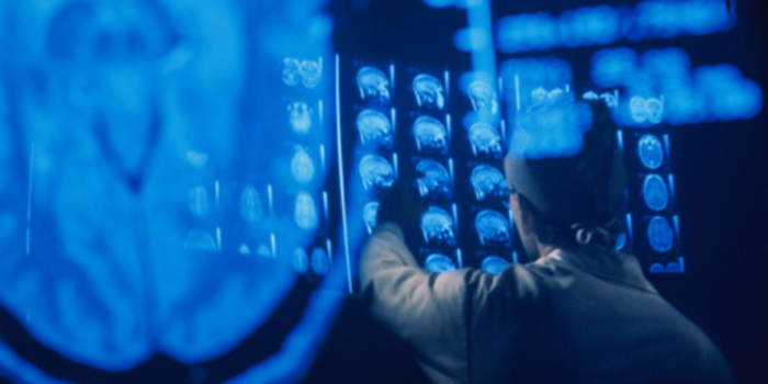 Machine Learning Radiology Startup Zebra Medical Vision Gets $12M Funding